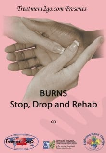 Burns:  Stop, Drop and Rehab