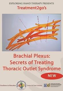Brachial Plexus: Secrets of Treating TOS